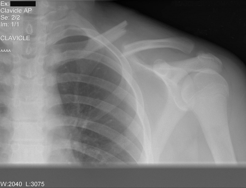 Clavicule fracture Fred 03-03-2010